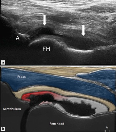 Disorders of the Groin and Hip: Anterior   Radiology Key