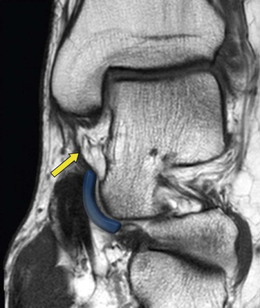 Ankle Joint and Forefoot: Anatomy and Techniques | Radiology Key