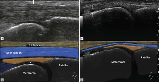 ultrasound imaging of joint disease radiology key