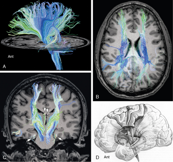 White Matter | Radiology Key