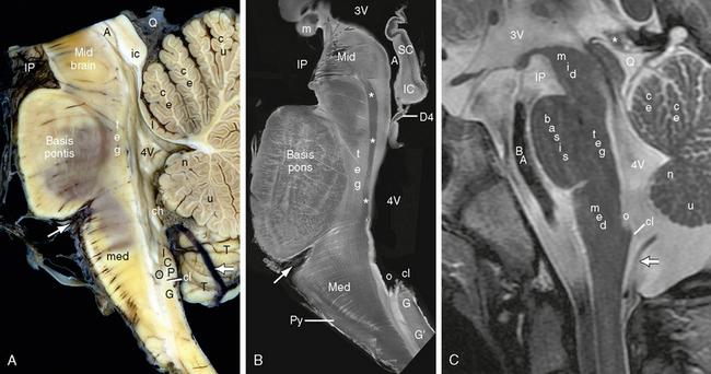 Brain Stem Radiology Key