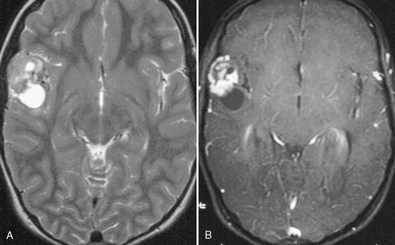 Intra axial neoplasms radiology key for Cystic lesion with mural nodule