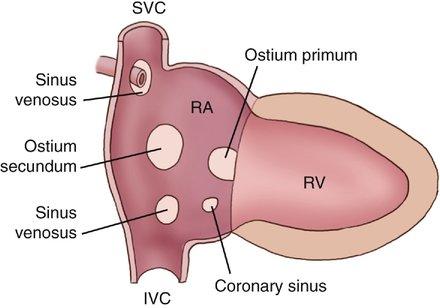 Atrial Septal Defects | Radiology Key  Sinus Venosus Asd