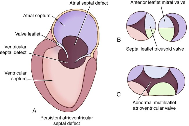 Ventricular Shunts In Adults