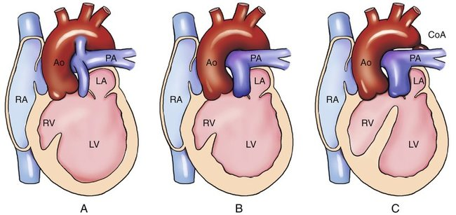 Hypoplasia Of The Right Ventricle