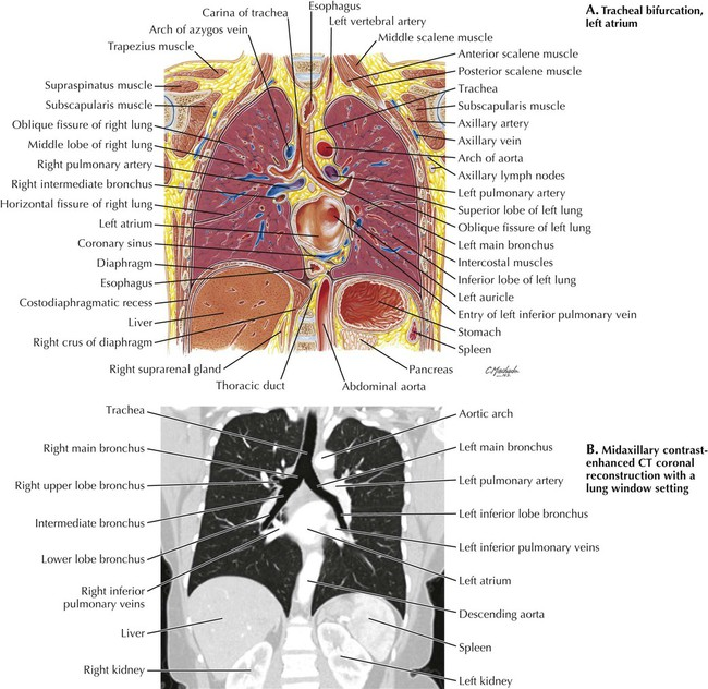 Thorax radiology key image ccuart Gallery