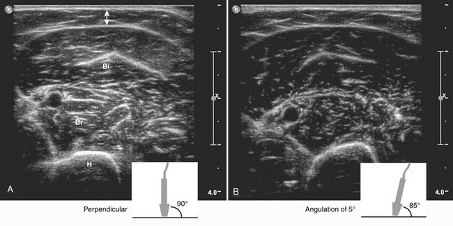 Ultrasound Of Muscle Radiology Key