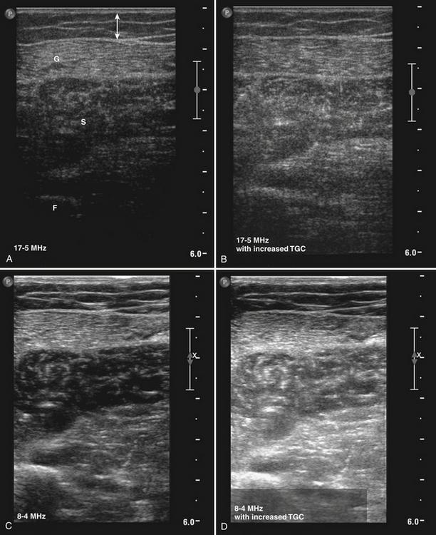 Ultrasound of Muscle | Radiology Key