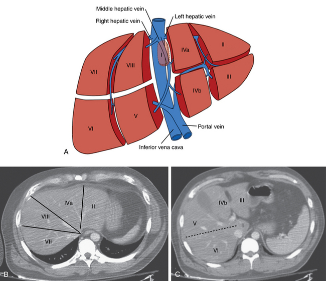 Hepatic Splenic And Portal Vascular Systems Radiology Key