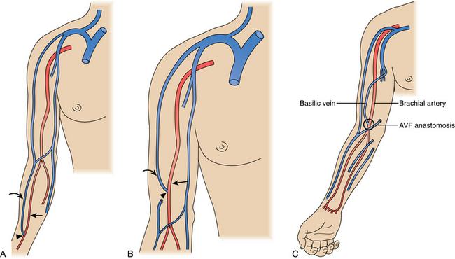 cephalic vein av fistula – gothing, Cephalic Vein