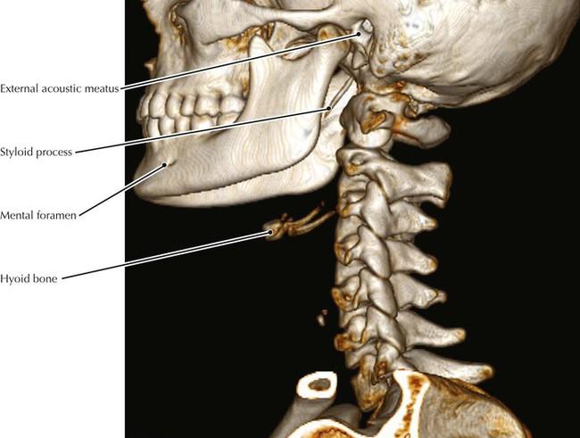 Maxillofacial ct anatomy