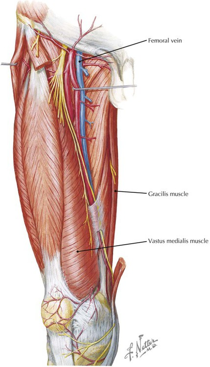 Lower Limb | Radiology Key