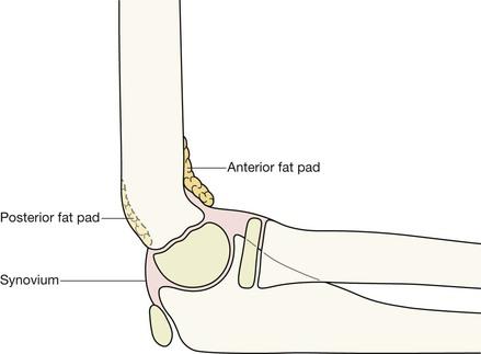 Paediatric Elbow Radiology Key
