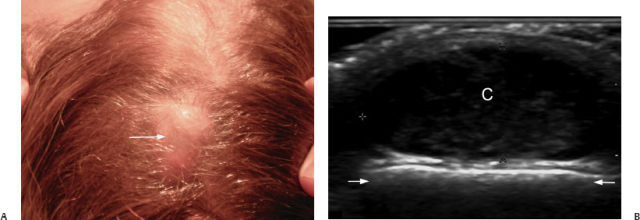Skin Imaging | Radiology Key