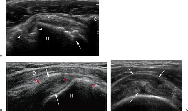 Ultrasound For Rheumatoid Arthritis Radiology Key