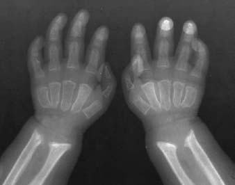 36 Hurler's Syndrome | Radiology Key  36 Hurler's S...