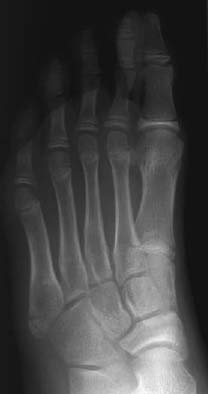 91 Base Of Fifth Metatarsal Fracture Radiology Key