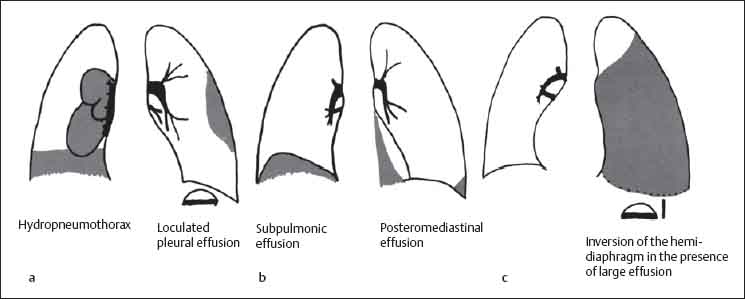 diseases of the pleura  diaphragm  and chest wall