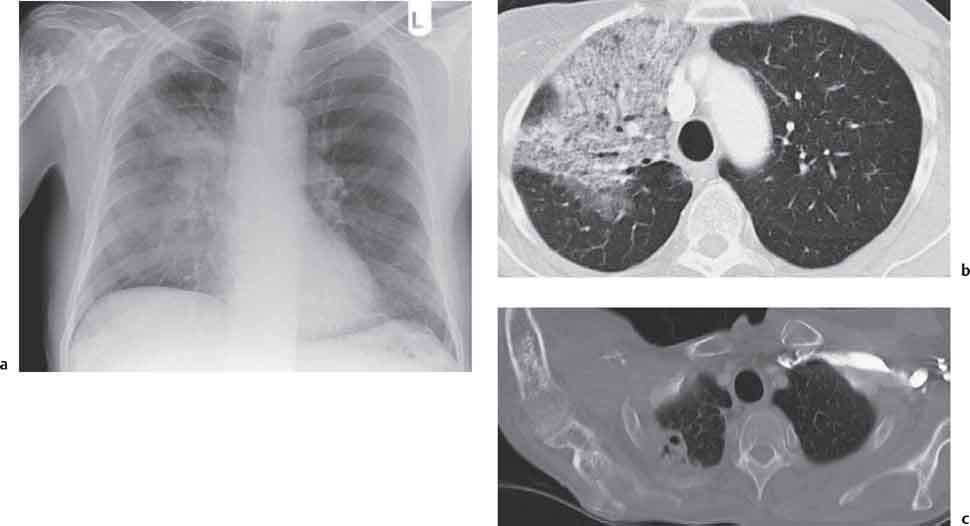 Radiographic Signs and Differential Diagnosis | Radiology Key