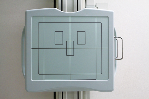 Automatic Exposure Control | Radiology Key