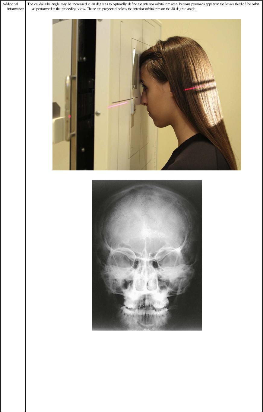 Radiographic Positioning   Radiology Key Skull X Ray Views Chart