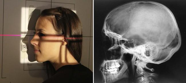 Radiographic Positioning   Radiology Key Skull X Ray Views Merrills