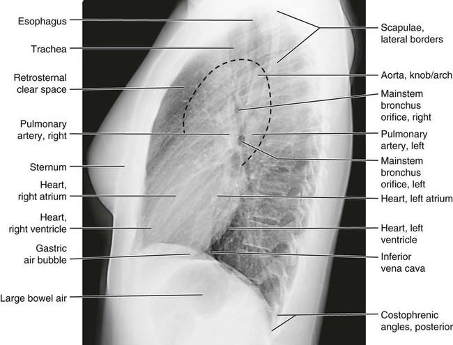 Lateral chest radiograph anatomy