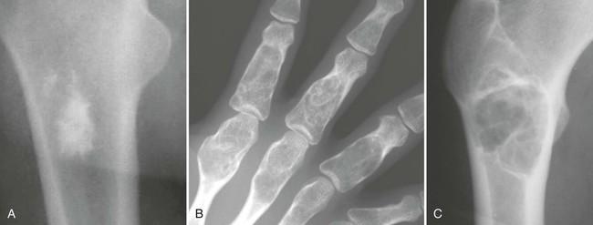 Bone Tumors and Related Diseases   Radiology Key Xray Femur Bone Island Concerning