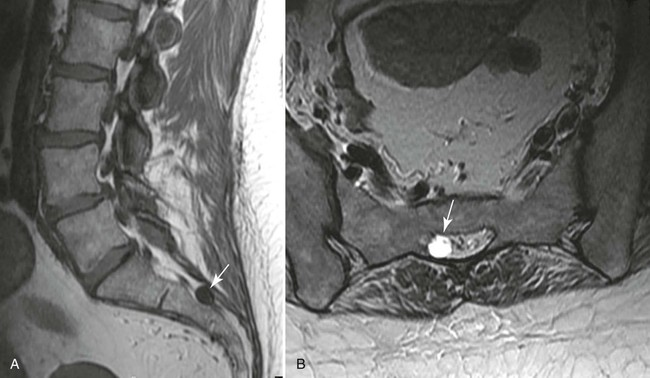Magnetic Resonance Imaging Patterns | Radiology Key Sacral Canal Cyst
