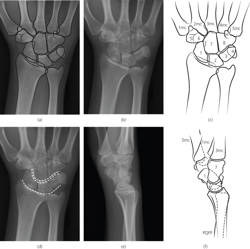 Hand And Wrist Radiology Key