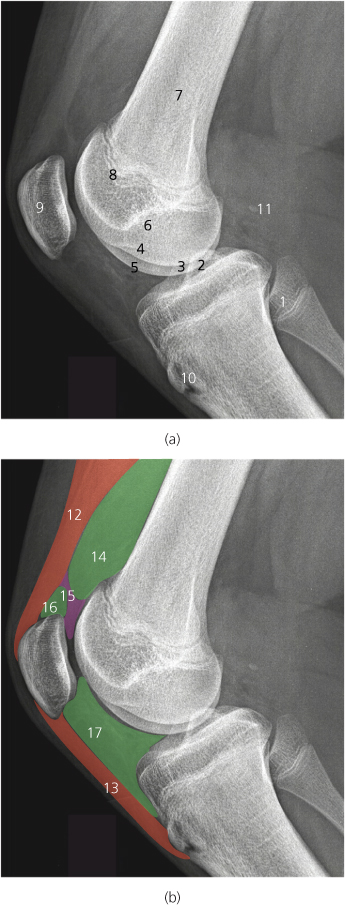 Knee Radiology Key