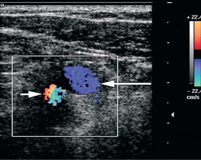 arm swelling | radiology key, Cephalic Vein