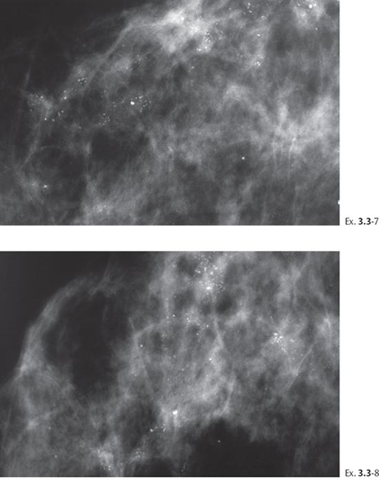 Cluster calcifications in breast