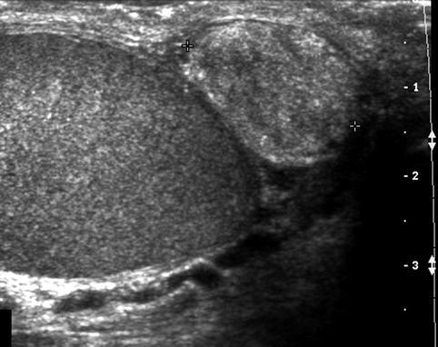 Ultrasound in Male Infertility | Radiology Key