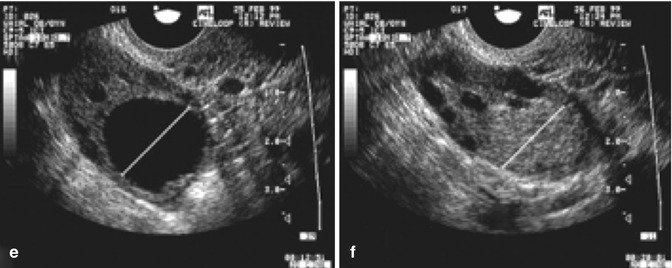 Ultrasound in Follicle Monitoring for Ovulation Induction/IUI