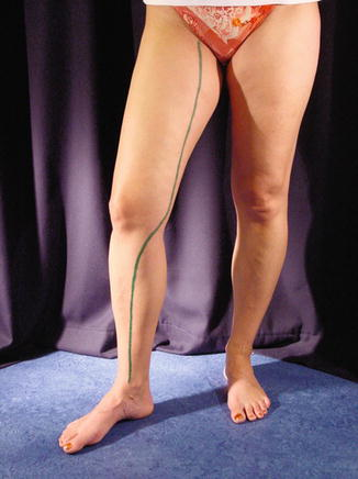 Anatomy of the Superficial Veins | Radiology Key