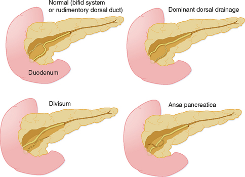 Pancreas | Radiology Key