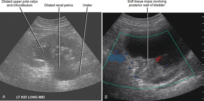 Images of Kidney Ultrasound Cost - #rock-cafe