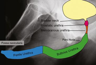 Figure 19-3 Illustration superimposed on a retrograde urethrogram ...