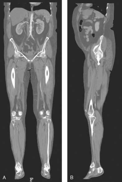 GENERAL ANATOMY AND RADIOGRAPHIC POSITIONING TERMINOLOGY | Radiology Key