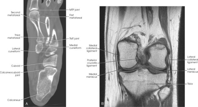 Axial plane anatomy