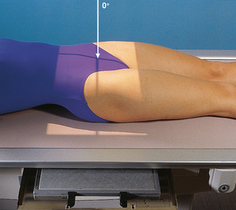 PELVIS AND UPPER FEMORA   Radiology KeyXray Femur Positioning