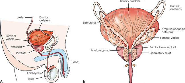 Reproductive System Radiology Key