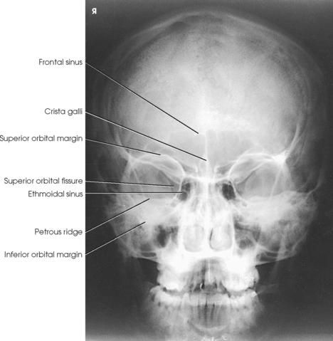 FACIAL BONES   Radiology Key Skull X Ray Views Merrills