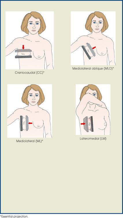 Mammography Radiology Key