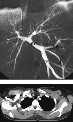 Vascular Cardiac And Interventional Radiography