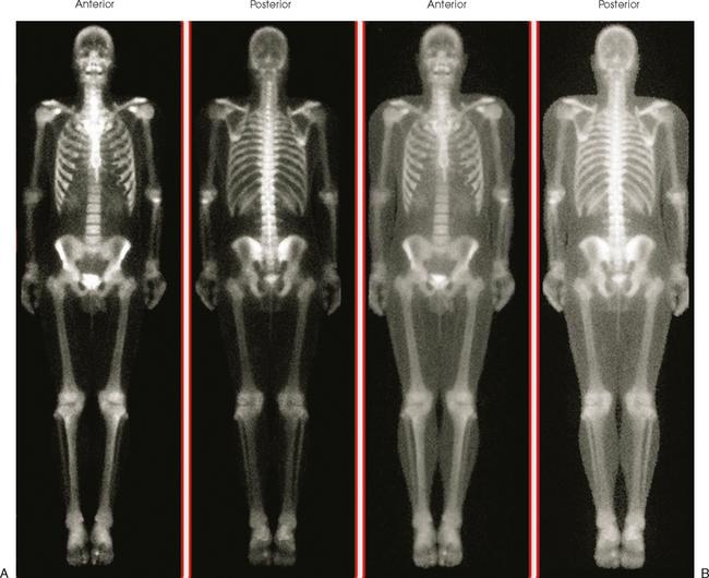 Nuclear Medicine Radiology Key