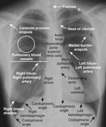 Chest x ray anatomy