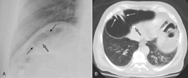 Recognizing Extraluminal Air In The Abdomen Radiology Key