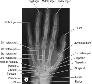 Fingers Hand And Wrist Radiology Key